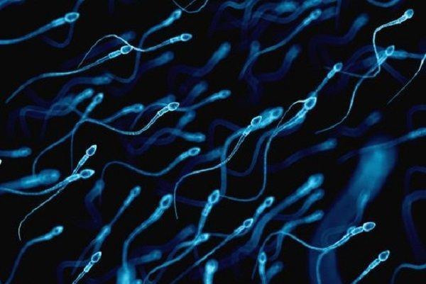 آنالیز اثر مکمل ها و ورزش هوازی بر کیفیت اسپرم توسط محققان رویان