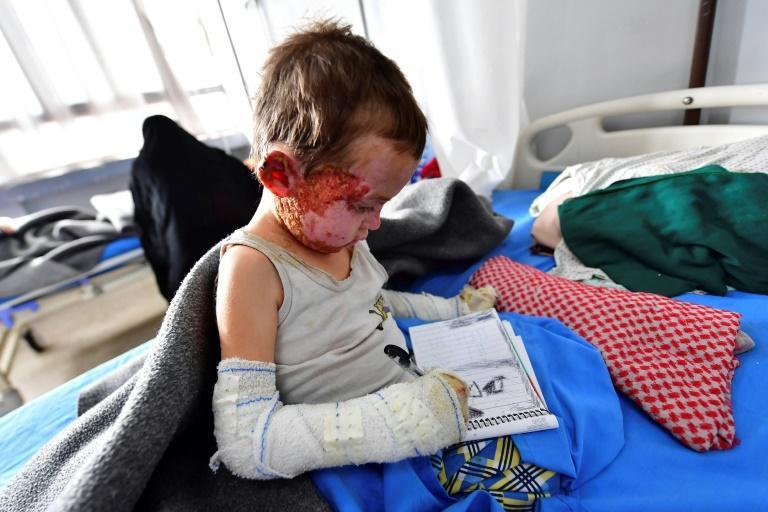 415 میلیون کودک در جنگ زندگی می کنند ، از فروش به داعش تا استفاده در جنگ سودان جنوبی